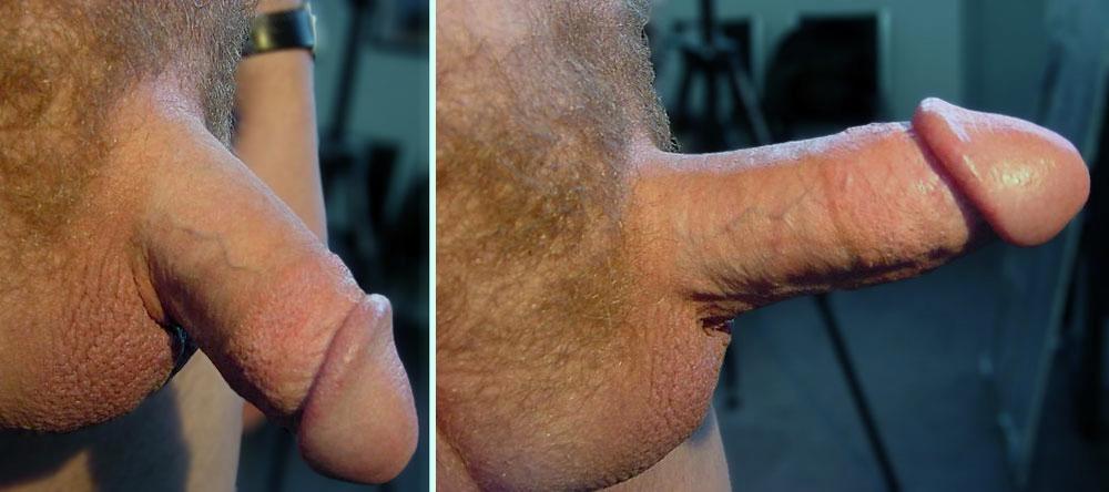 мужской орган в нормальном и возбужденном состоянии фото и видео